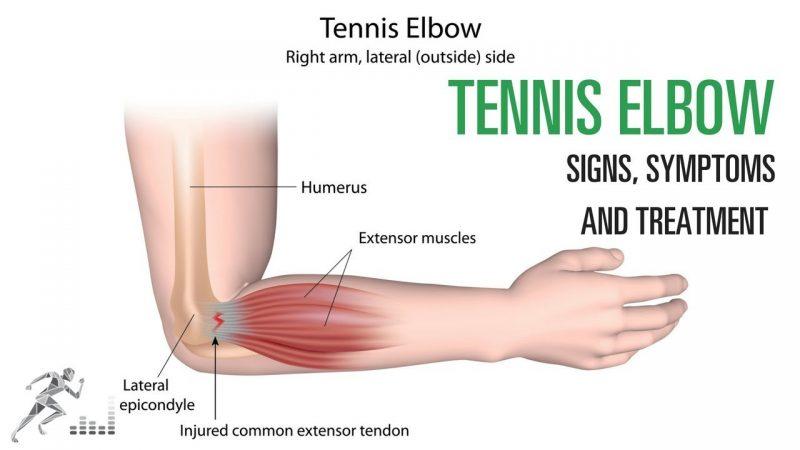 Understanding the Tennis Elbow Injury
