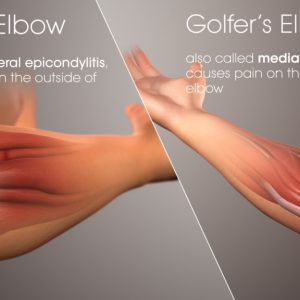 Bowlers Elbow: Is It the Same As Tennis Elbow or Different Altogether